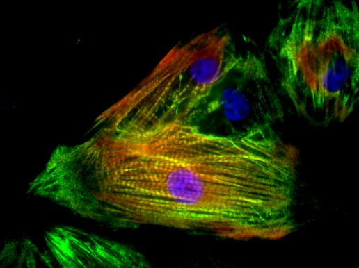 人源心肌细胞