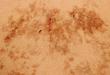 皮肤病理课:背部网状色素沉着