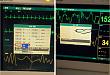 心电监护仪天天用,再来 10 个问题您是否也知道?