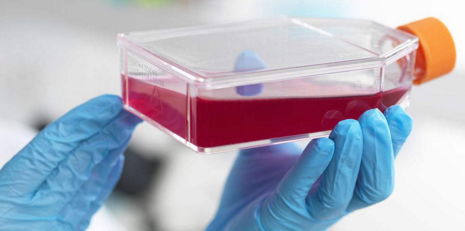 ES-2(ES2);人卵巢透明癌细胞