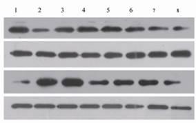 蛋白质免疫印迹杂交