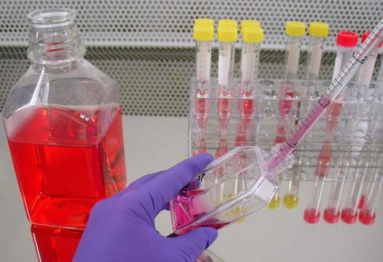 JeKo-1;人套细胞淋巴瘤细胞