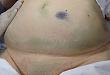 盘点:急性胰腺炎的皮肤表现