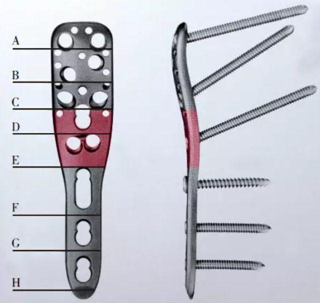 肱骨骨折 肱骨近端骨折:增强内侧支撑的 4 类办法