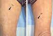 病例报道:泛发胆固醇结晶栓塞