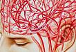伴大血管闭塞的轻型卒中患者是否应当取栓?