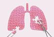 肺栓塞合并中重度血小板减少,如何进行抗栓治疗?