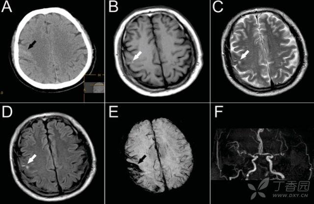 短暂性脑缺血发作 看似「短暂性脑缺血发作」,诊断却出乎意料!