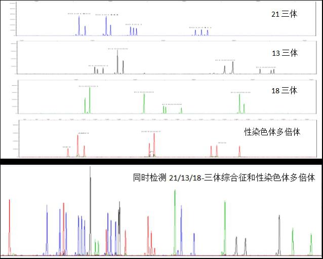 21三体、13三体、18三体和性染色体多倍体分析试剂盒 Human Trisome(T21,T13,T18 and Sex) polyploidy Analysis kit