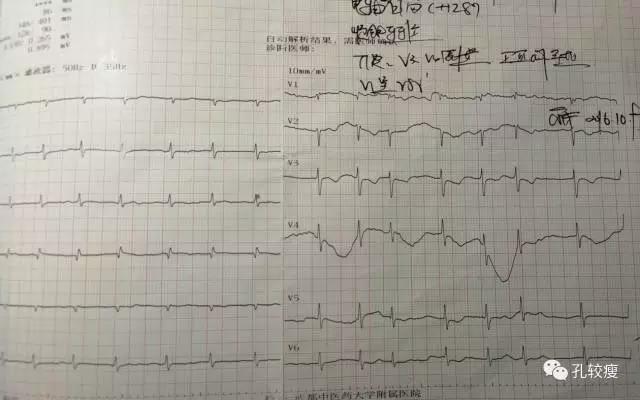 心律失常射频消融术 房颤+心脏扩大+心衰=心律失常性心肌病?