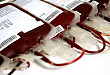 输血前,你还在给病人用地塞米松吗?