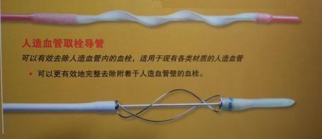 超声引导下AVG球囊取栓并狭窄扩张术1917.png