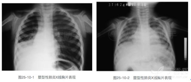 """肺炎胸片图_咳嗽6天,""""左肺""""消失了..... - 呼吸与胸部疾病讨论版 -丁香园论坛"""