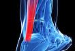 饮酒可降低创伤后深静脉血栓风险