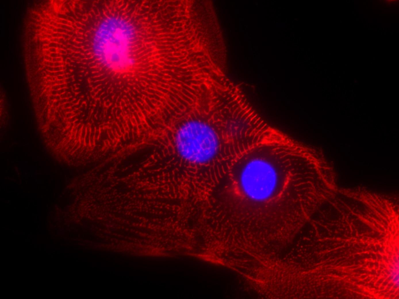 人类干细胞来源心肌细胞