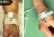 患者拒绝使用留置针,你可以试试这样解释
