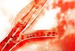指南速览:2018 欧洲脑静脉血栓形成诊断和治疗指南