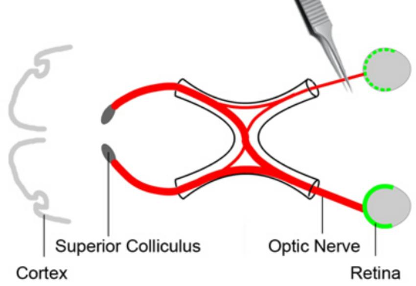 视神经钳夹损伤致青光眼模型(ONC)及药效实验