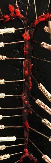 ApoE小鼠(动脉粥样硬化)模型整体实验外包服务