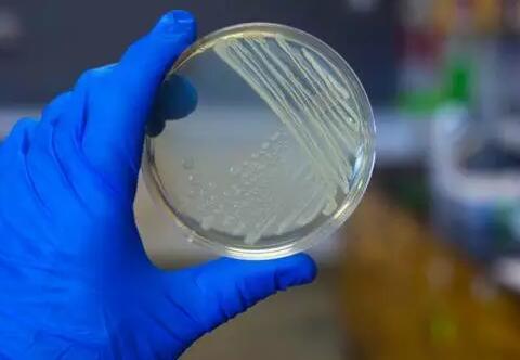 微生物检测