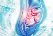 胎盘植入:超声只不过是筛查的一种手段