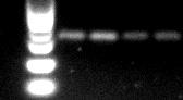 普通RT-PCR