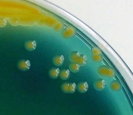 大肠埃希氏菌培养