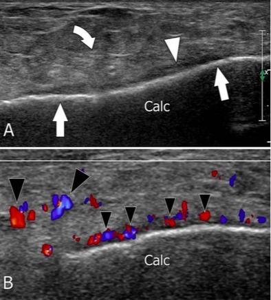 超声应力仪 跟骨应力性骨折的超声特征