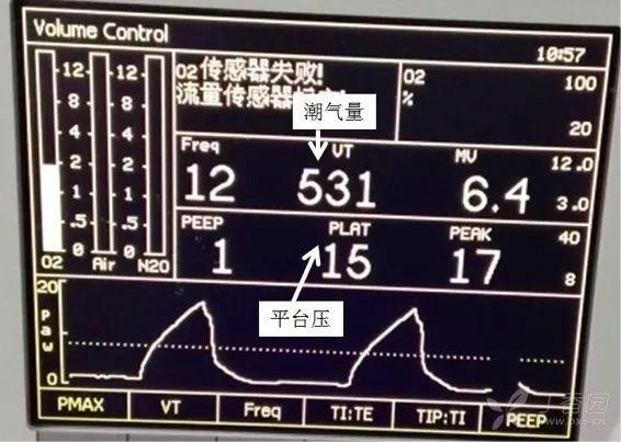 呼吸机3.jpeg