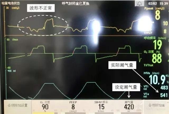 呼吸机6.jpeg