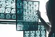 看图猜病:金属铁沉积相关疾病影像鉴别