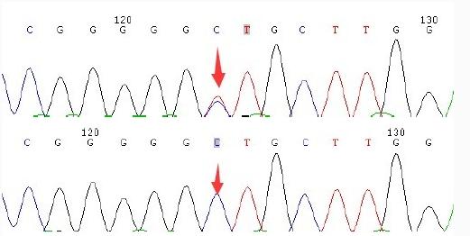 SNP检测(sanger测序法)