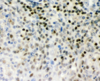 南昌組織蛋白酶q抗體