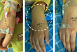 有图有真相:8 种药物 9 个静脉输液外渗后处理