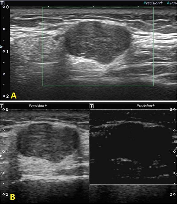 腮腺多形性腺瘤超声体现 超声辨别腮腺多形性腺瘤和腺淋巴瘤的新方法