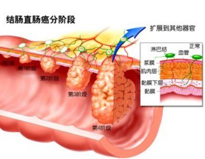 小鼠結腸癌模型