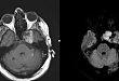 看图说话:57 岁男性,左侧面部麻木、听力下降 6 周