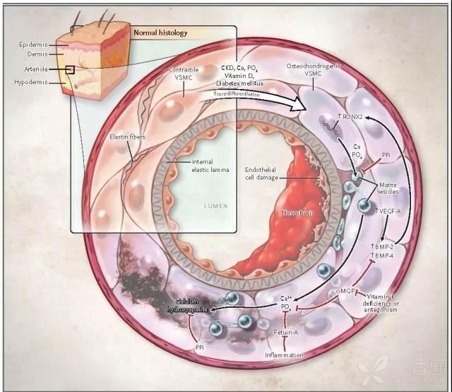 图2 钙化防御的病理生理机制.jpg