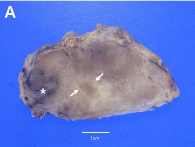 图4A.PNG