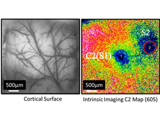 3001 Lynx脑成像仪 –微光成像系统