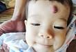 草莓状、海绵状……婴幼儿血管瘤你知多少?
