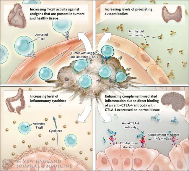 sample1-Immune-Related Adverse Events Associated with ImmuneCheckpoint Blockade.jpg