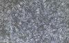 人乳腺上皮细胞/免疫荧光鉴定