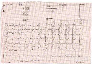 心脏在同步起搏对治疗心衰好吗 心衰并 LBBB 患者行希浦系统起搏 CRT-D 植入