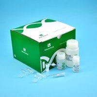 血液基因组DNA回收试剂盒离心柱型200次