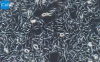 B16小鼠黑色素瘤细胞/中科院细胞库/赛百慷(iCell)