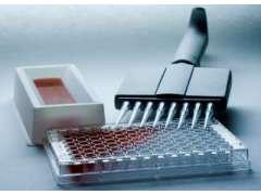小鼠IL2rb/CD122检测试剂盒售价