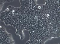 BT-474 [BT474]人乳腺导管癌细胞