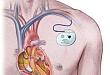 植入型心律转复除颤器在慢性肾脏病中的应用