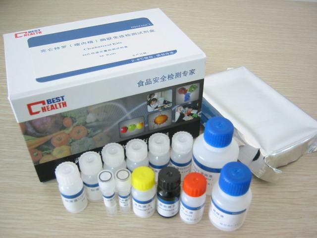 豬sP-Selectin elisa檢測試劑盒
